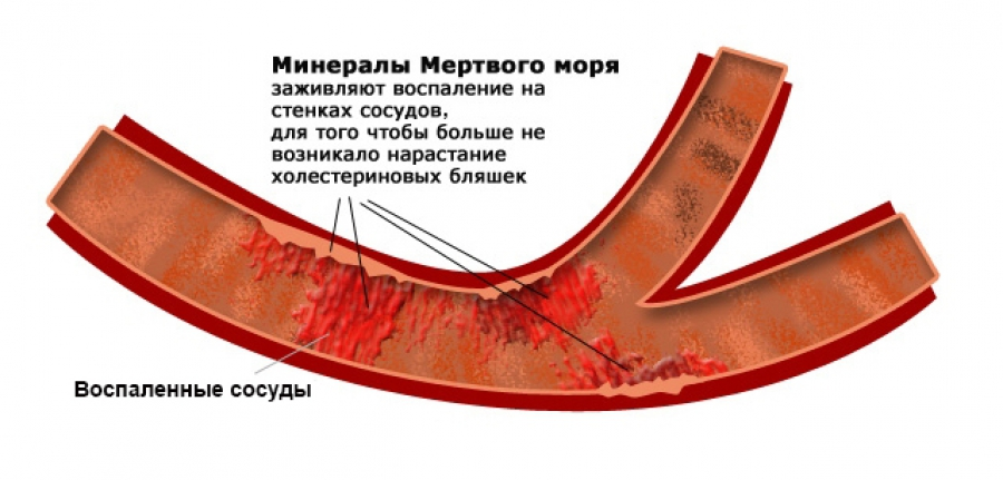 Fighting Atherosclerosis_Step 2