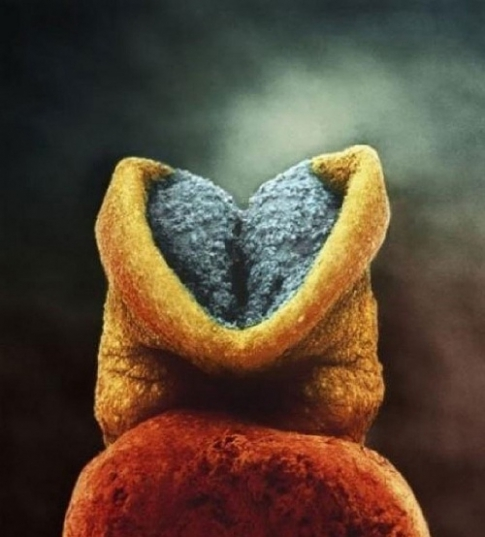 Embryo in the womb