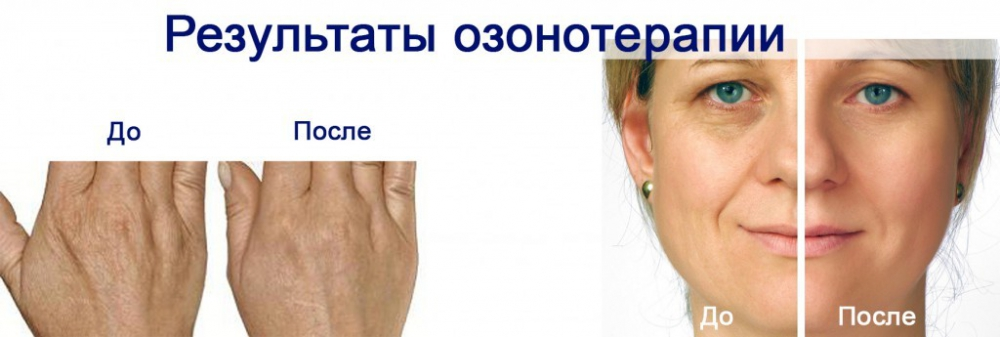 Face and hands after ozone therapy