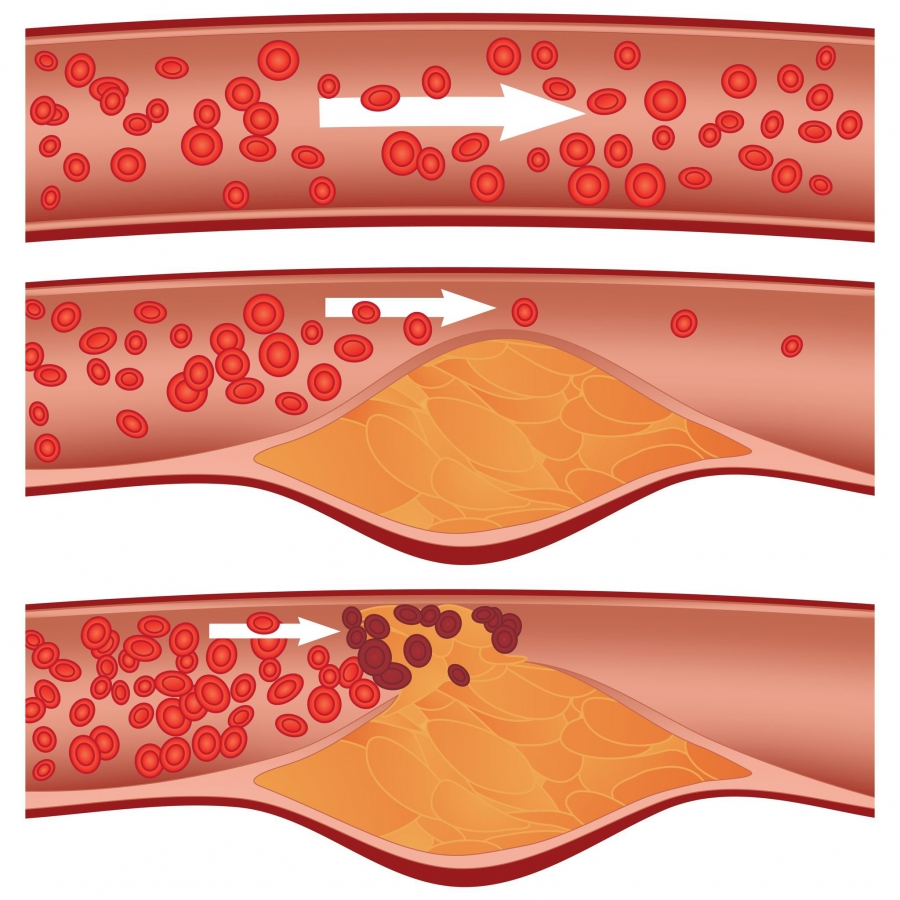 Atherosclerosis vessels